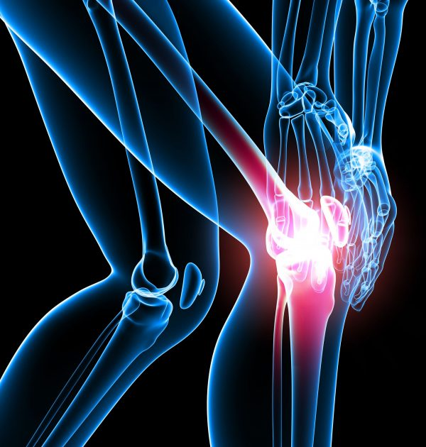 13756381 - x-ray of female knee pain in black
